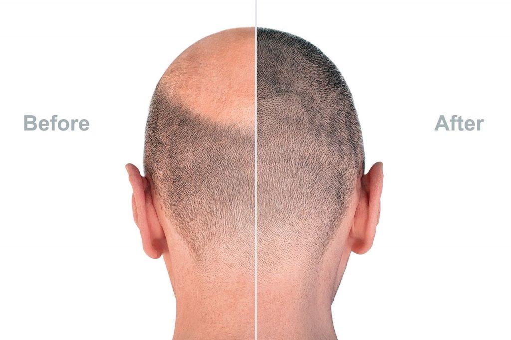 Jak dbać o skórę głowy po przeszczepie?