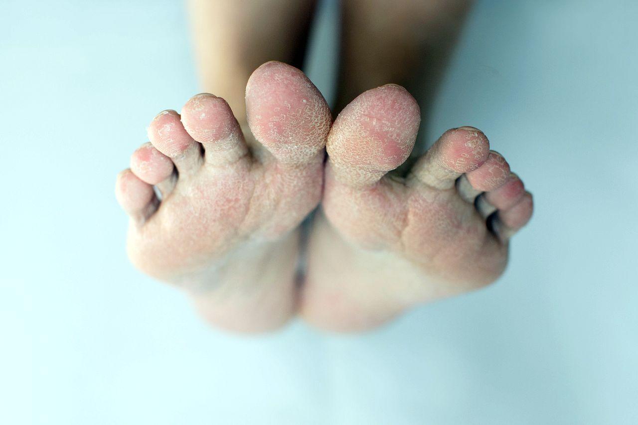 Jak leczyć zespół stopy cukrzycowej